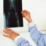Eine Hunde OP-Versicherung bezahlt auch eine notwendig werdende Operation bei Hüftgelenksdysplasie.